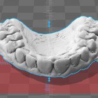3D-Digitalisierung von Gebiss-Modellen